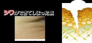 シワができた肌の断面図